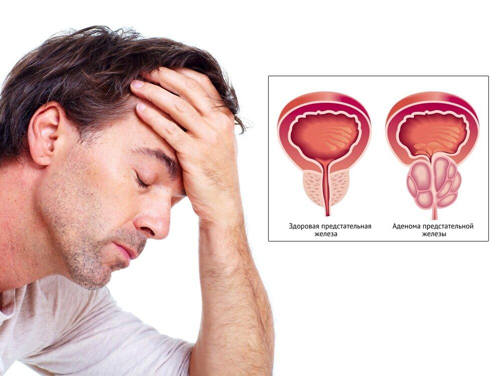 Слюна при простатите от простатита может из рта
