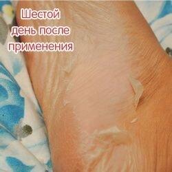 Носочки от мазолей и натоптышей Lovely Foot до 31 см. для мужчин - фото 5