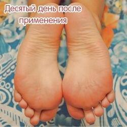 Носочки от мазолей и натоптышей Lovely Foot до 31 см. для мужчин - фото 6