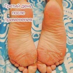 Носочки от мазолей и натоптышей Lovely Foot до 31 см. для мужчин - фото 3
