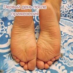 Носочки от мазолей и натоптышей Lovely Foot до 31 см. для мужчин - фото 2