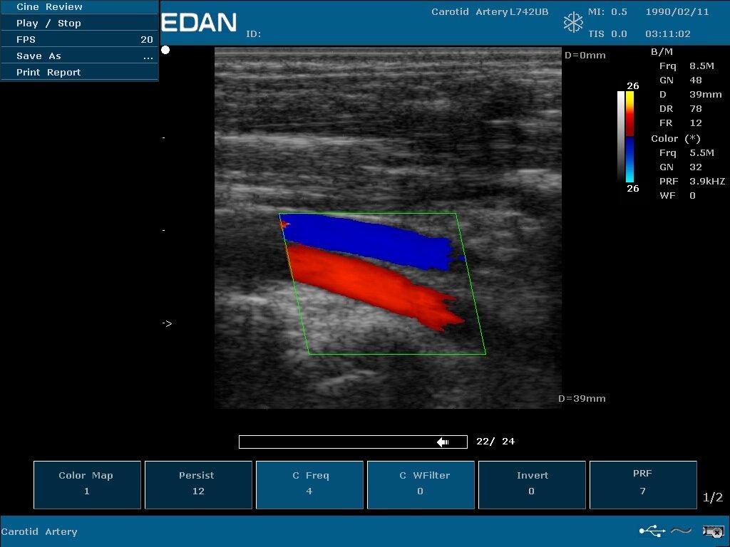 Портативная ультразвуковая диагностическая система обработки изображений EDAN U50 - фото pic_c319c4a6fb644eaabbcd3d05e800d803_1920x9000_1.jpg