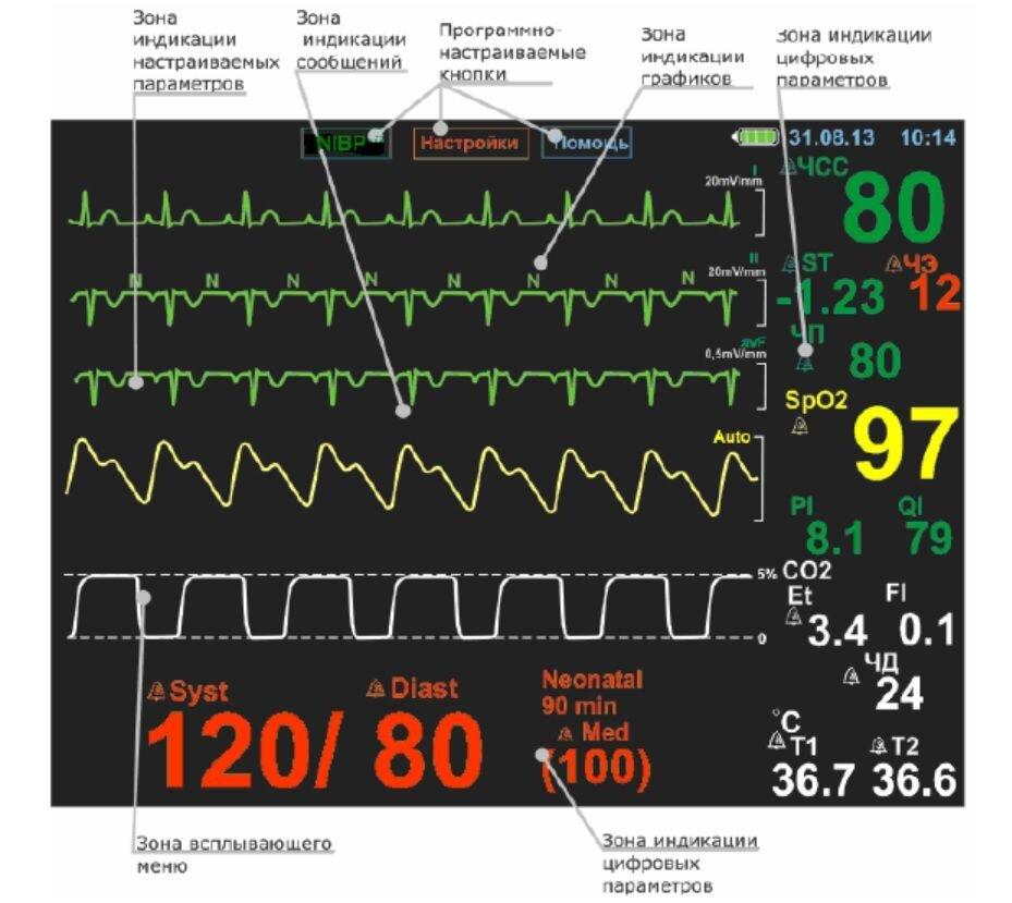 Монитор пациента МАР-02-КАРДЕКС, модель МАР-02-08 - фото Экран МАР-02-8 для полной комплектации