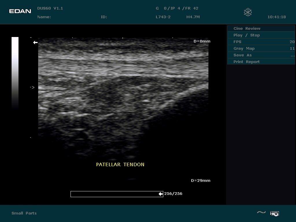 Портативная ультразвуковая диагностическая система обработки изображений DUS 60 - фото pic_ab569e0233e0561d6ca0e5b9254a100c_1920x9000_1.jpg
