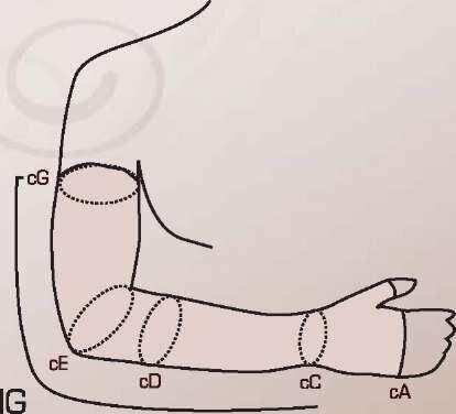 Рукав онкологический второго класса компрессии без крепления на плечо, с перчаткой (артикулы 522) - фото pic_454cc973eb97df7_1920x9000_1.jpg