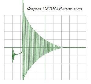 Форма импульса электростимулятора СКЭНАР